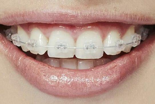 ミイヒ歯がない矯正八重歯