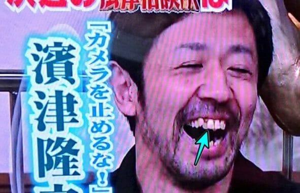 濱津隆之の歯並び二重歯列