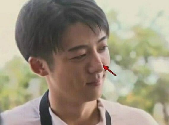 高橋一生鼻の傷跡ない粉瘤