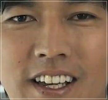 要潤の若い頃の歯並び